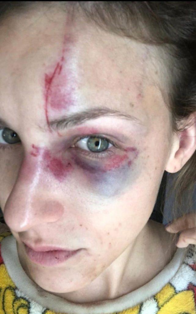 Foto1 Melissa Gentz Brasileiro acusado de agredir namorada é preso na Flórida