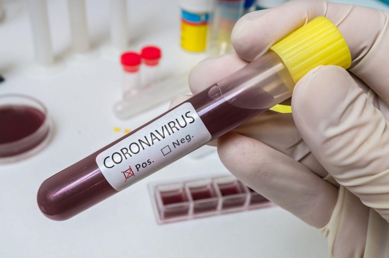 coronavirus blood test scaled Coronavírus: New Jersey já tem 44 vítimas fatais