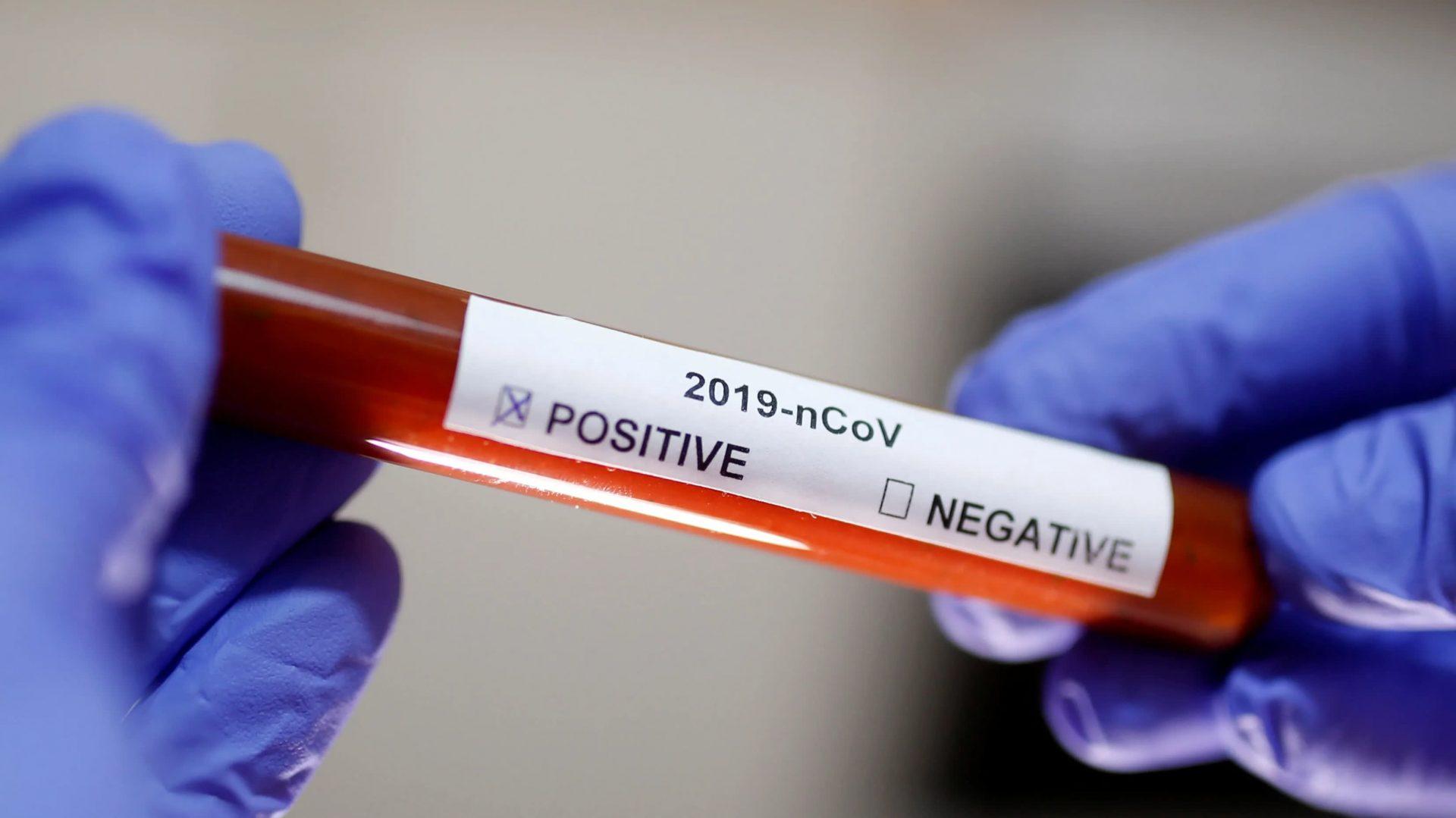 eng GB Cropped 1580421113RTS300FZ scaled New Jersey é o 2º estado em testes positivos de coronavírus nos EUA