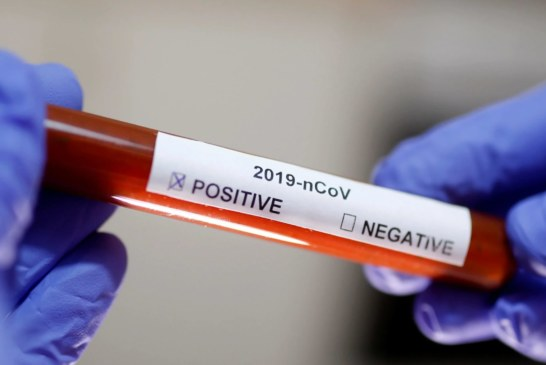 Por que NJ e NY são o epicentro do coronavírus nos EUA?