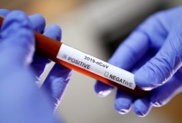 Coronavirus teste  scaled 266x179 Home page