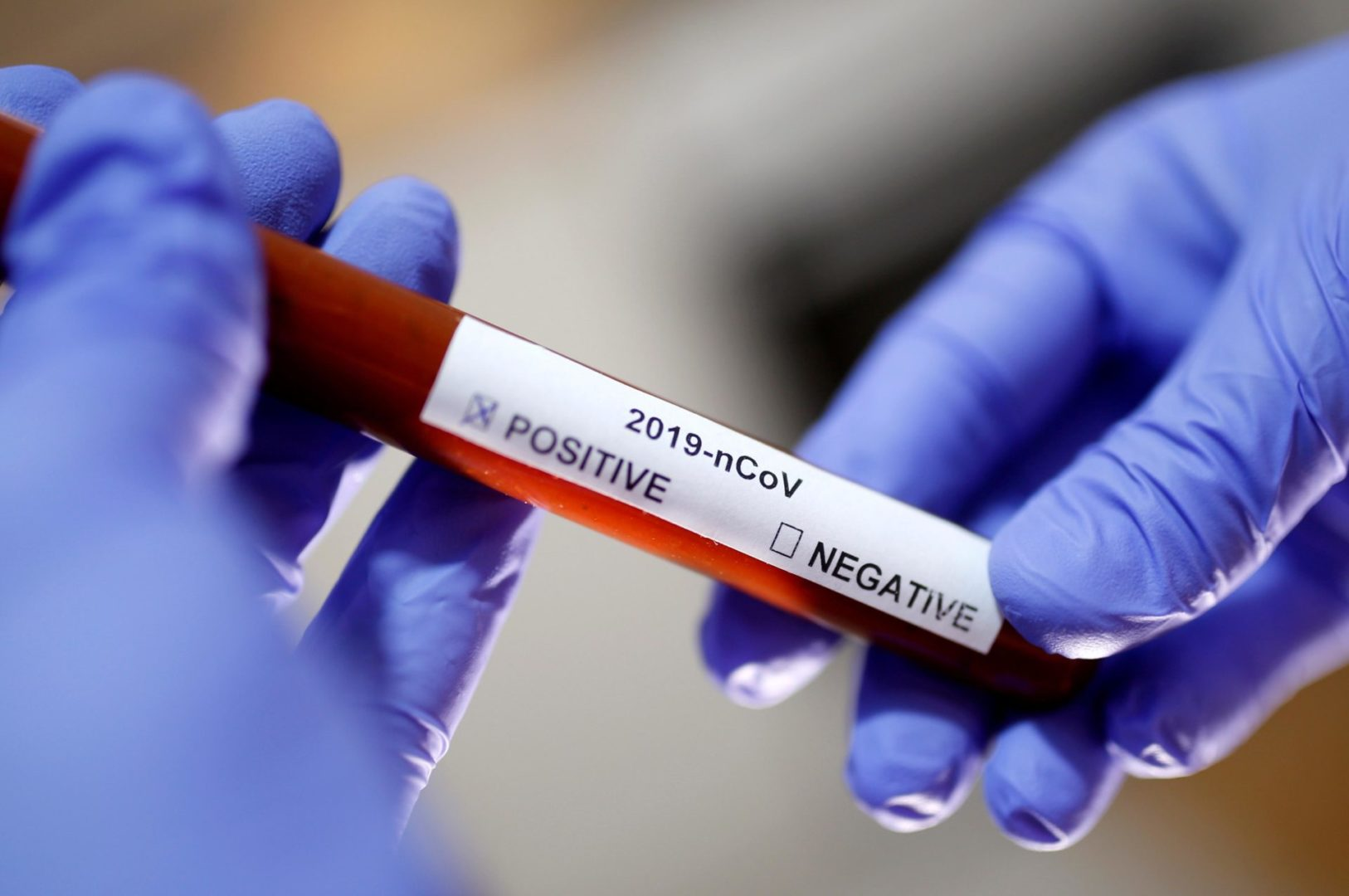 Coronavirus teste 1 2 scaled Brasil poderá ultrapassar os EUA em mortes por coronavírus em julho